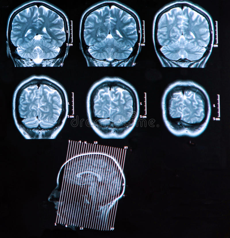 Mri Brain Scan stock foto