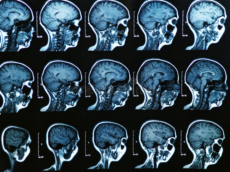 Mri Brain Scan royaltyfri fotografi