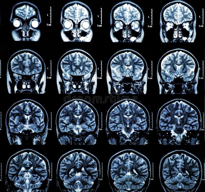 MRI Brain Scan royalty-vrije stock foto