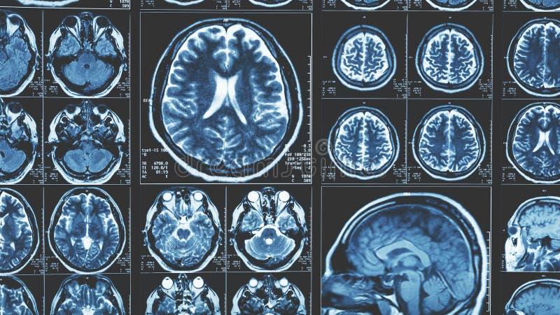Mri brain scan background, magnetic resonance tomography. Blue toned stock photos