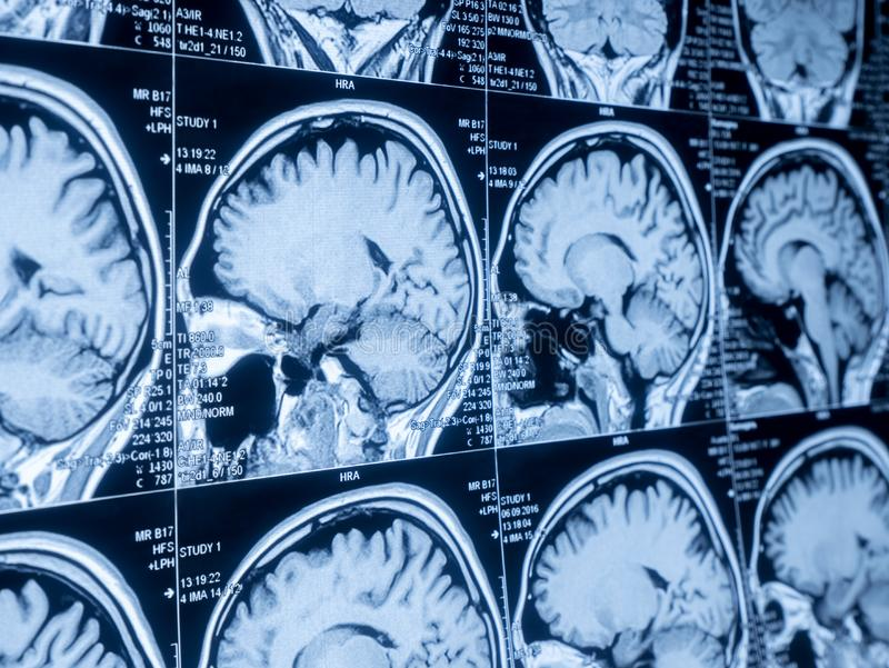 MRI Brain Scan of head and skull stock photography