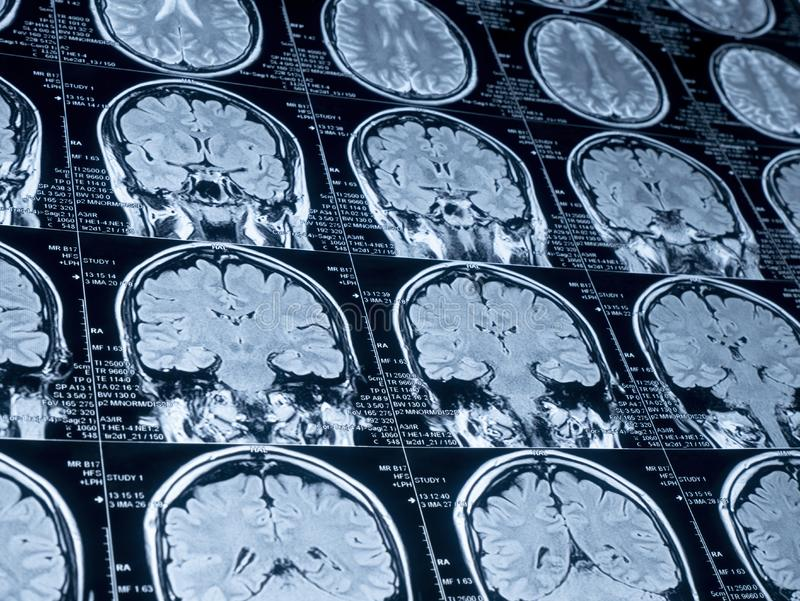 MRI Brain Scan of head and skull royalty free stock photography