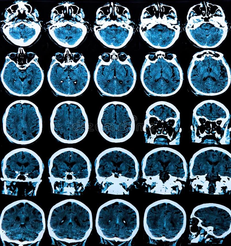 Mri Brain Scan royalty free stock image