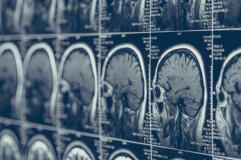 MRI brain scan or x-ray neurology human head skull tomography test. Illness diagnostic research brain diseases concept, selective focus royalty free stock photo