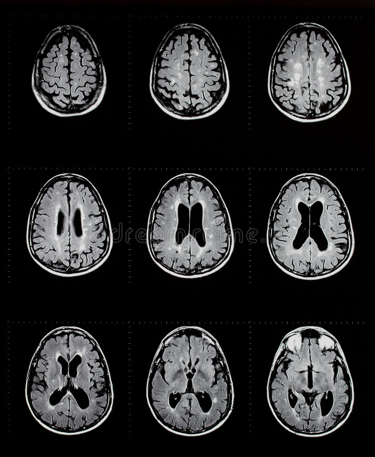 Mri of brain showing multiple sclerosis royalty free stock images