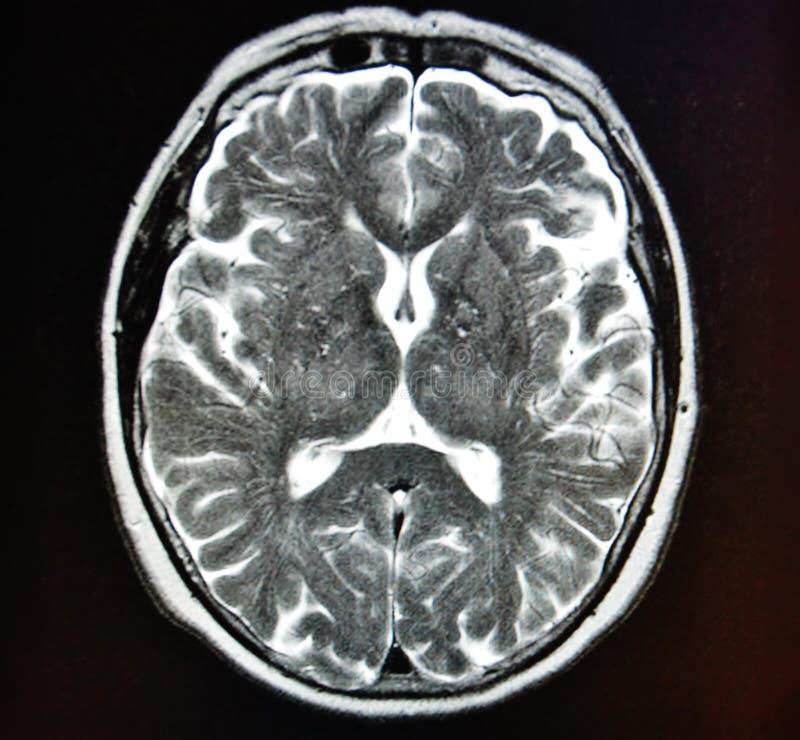 Mri brain stroke royalty free stock images