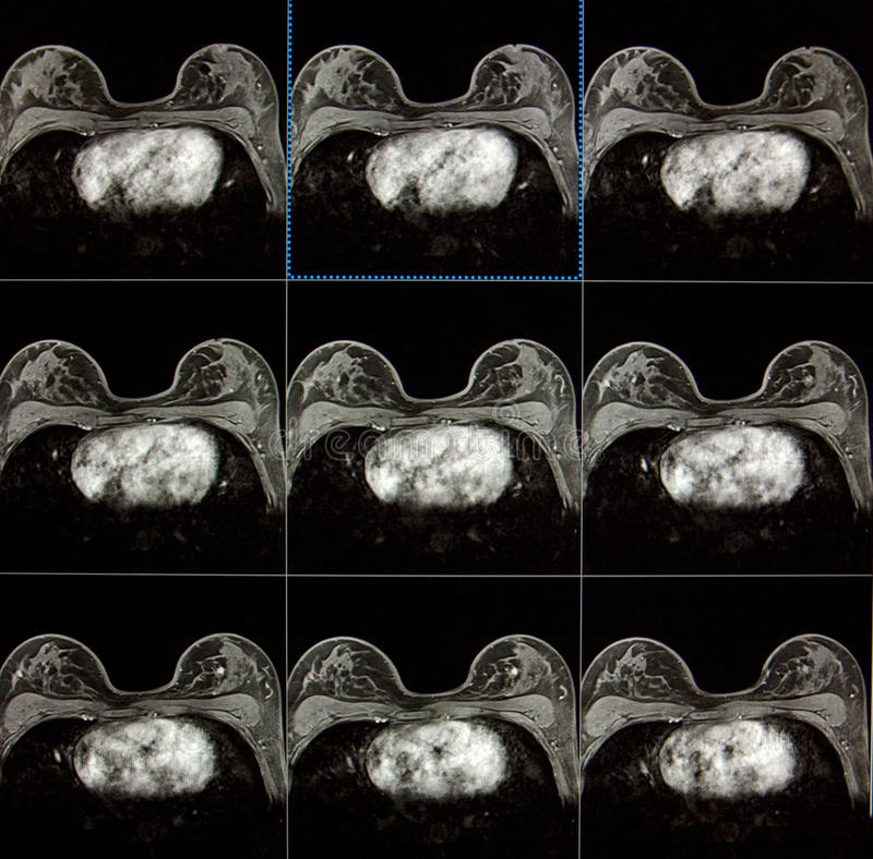 MRI of breast - breast cancer. Magnetic resonance imaging of breasts (MRI) - searching and detecting breast cancer royalty free stock photography