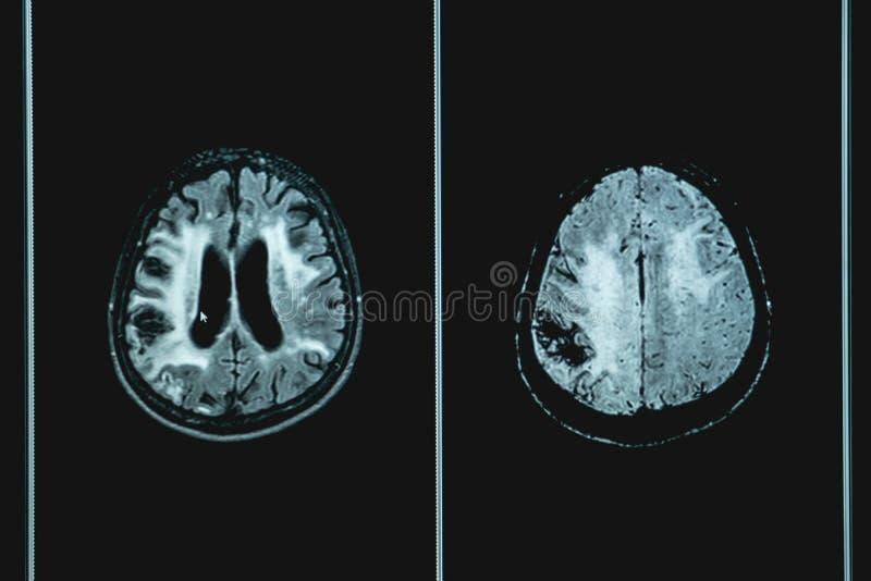 MRI brian av demenspatienten arkivbild