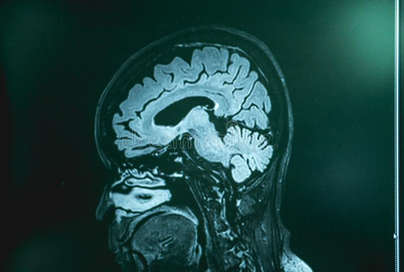 MRI Brian demencja pacjent zdjęcie stock