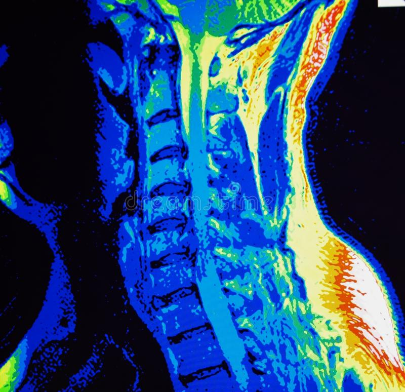 Mri of cervical spine stenosis. The basis of modern medicine is modern diagnostic with possibilities to show area of pathology in different positions and royalty free stock photography