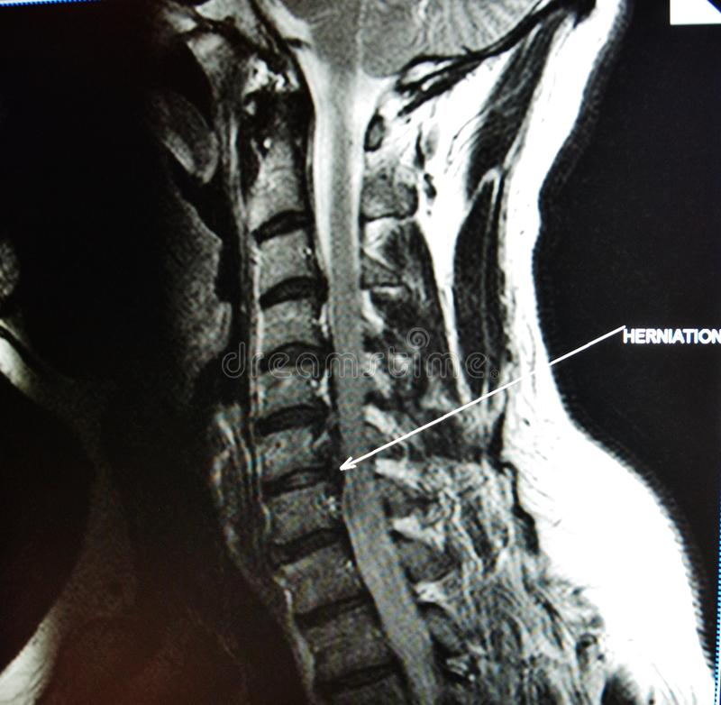Mri of cervical spine stenosis. The basis of modern medicine is modern diagnostic with possibilities to show area of pathology in different positions and royalty free stock images