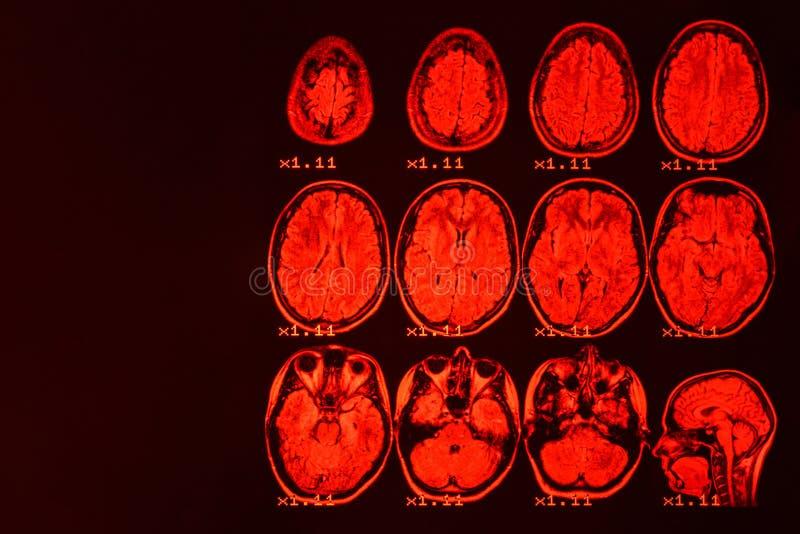 MRI del cerebro en un fondo negro con el contraluz rojo fotos de archivo