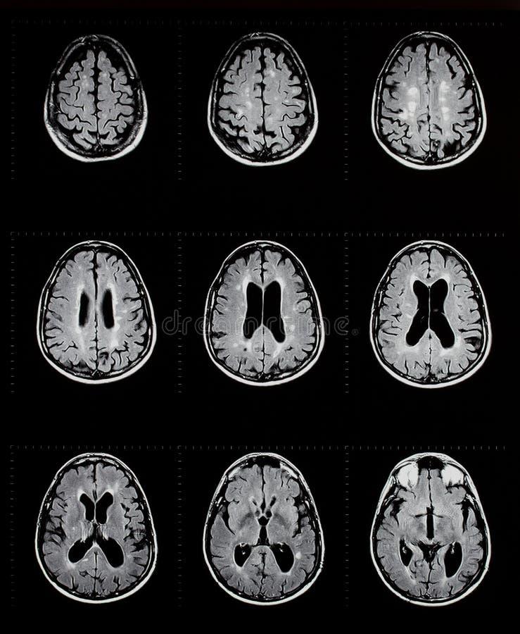Mri del cerebro que muestra esclerosis múltiple imágenes de archivo libres de regalías
