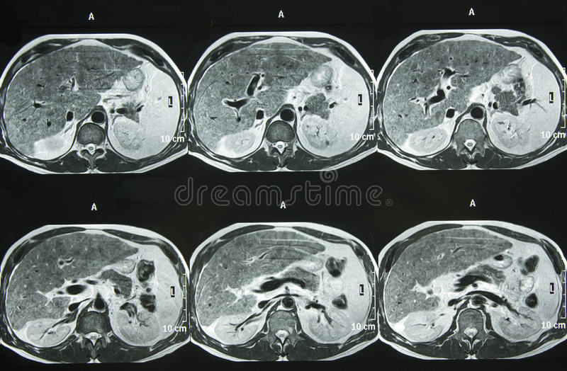 MRI dell'addome immagine stock libera da diritti