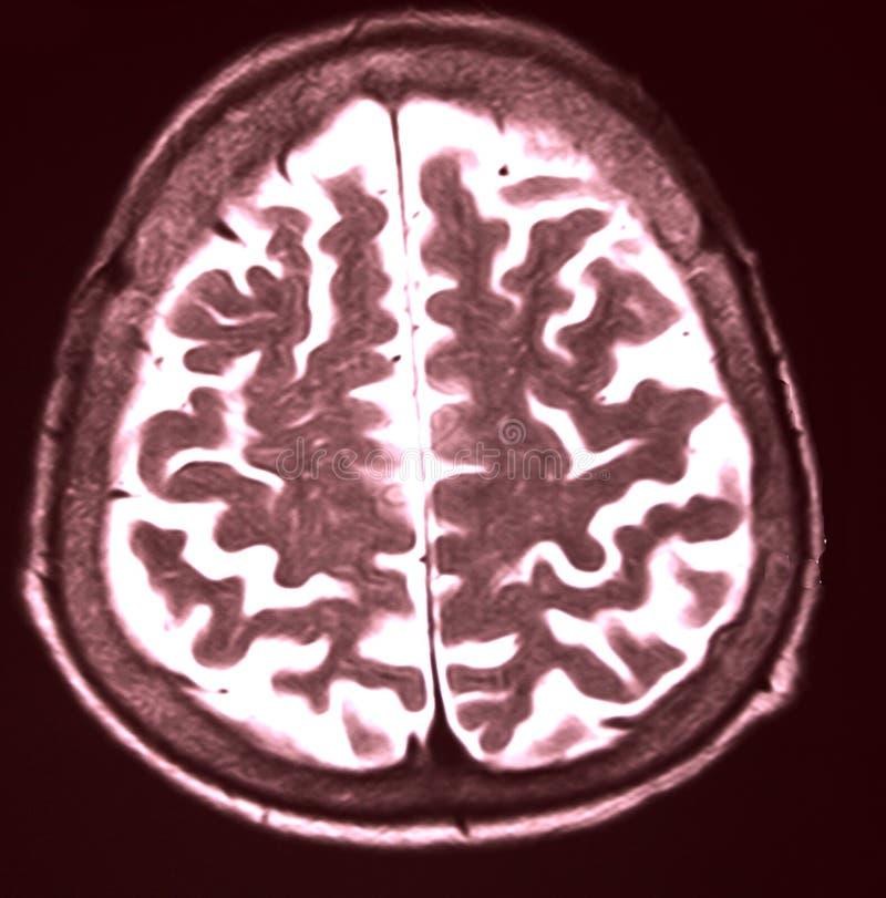 MRI des Gehirns lizenzfreie stockfotografie