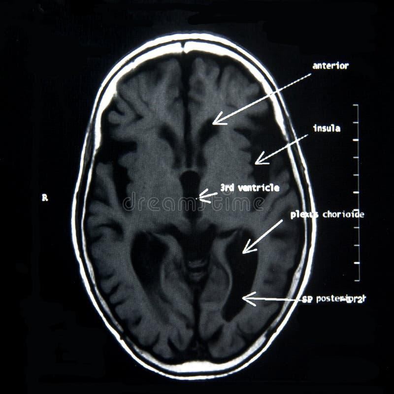 MRI des Gehirns stockfoto. Bild von klinik, gehirn, radiologie ...