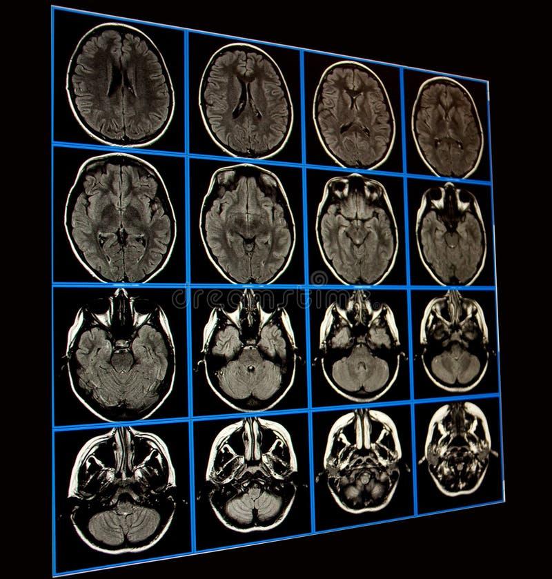 MRI des Gehirns lizenzfreies stockbild