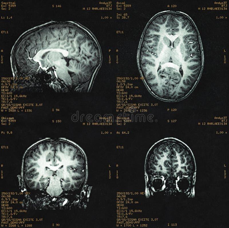 MRI do cérebro de uma criança imagem de stock royalty free