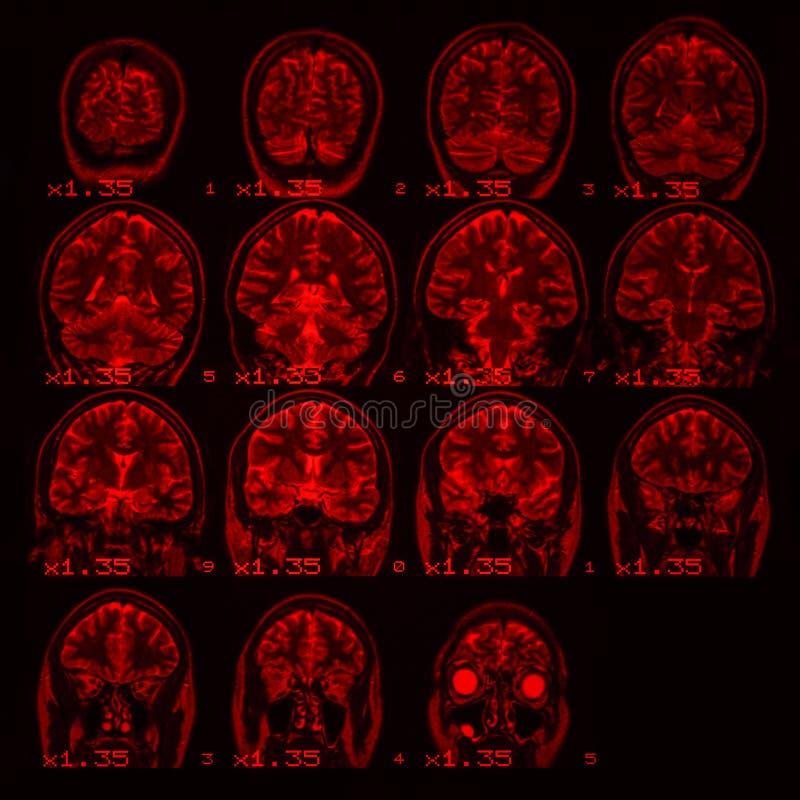 MRI do c?rebro em um fundo preto com luminoso vermelho imagem de stock