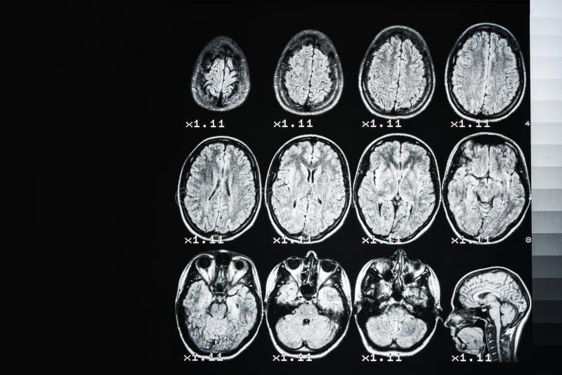 MRI do c?rebro de uma pessoa saud?vel em um fundo preto com luminoso cinzento imagens de stock royalty free