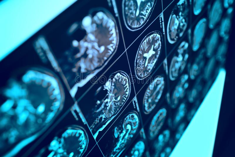 MRI film with human head as a conceptual medical background.  stock photography