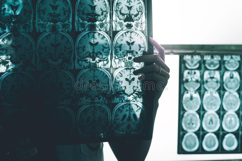 Alzheimer`s disease on MRI royalty free stock photography