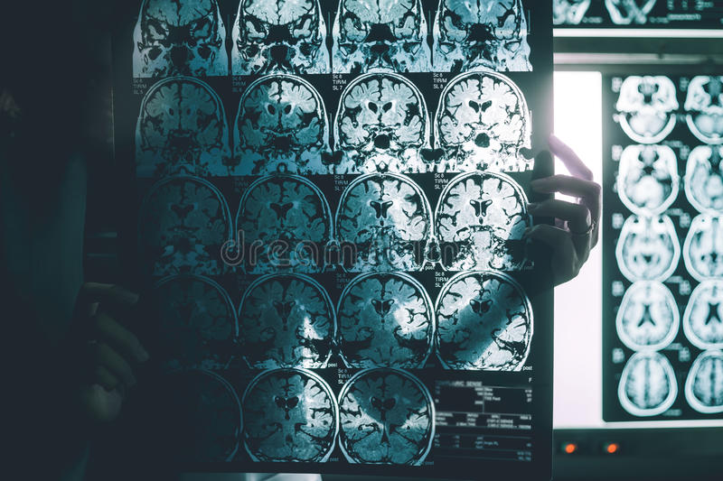 Alzheimer`s disease on MRI royalty free stock images