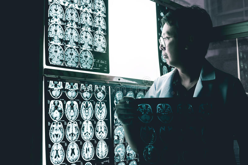 Dementia brain on MRI royalty free stock image