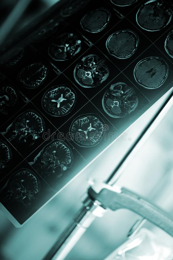 MRI film of patient`s head in the hospital room. Medocal concept of neurological diseases stock image