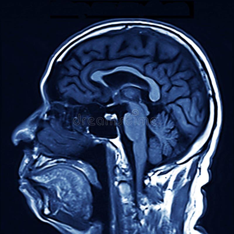 MRI Gehirn-Scan stockfoto. Bild von knochen, filme, frontseite ...