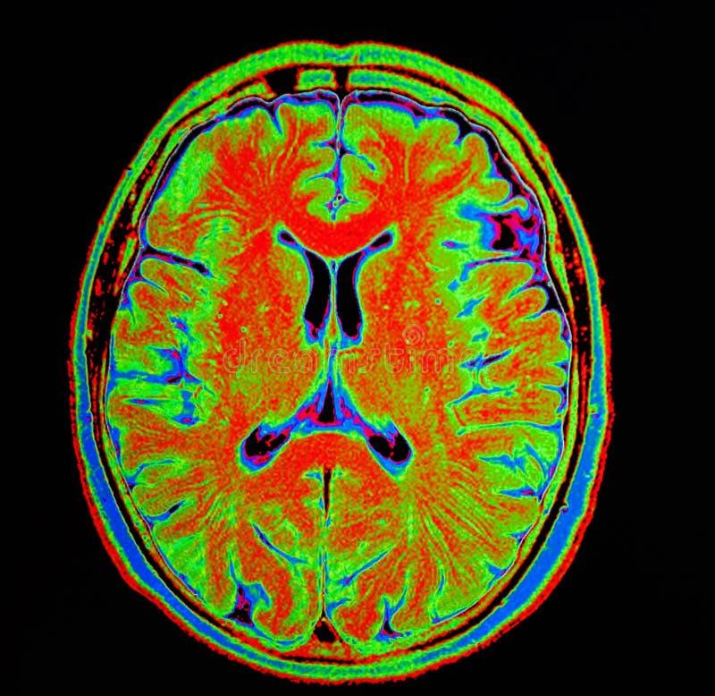 Mri-Gehirnanschlag stockfotos