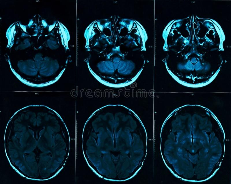 MRI head scan on dark background blue color. X-ray medicine and medication concept royalty free illustration