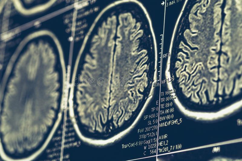 MRI-hersenenaftasten of x-ray de tomografietest van de neurologie menselijke hoofdschedel royalty-vrije stock fotografie