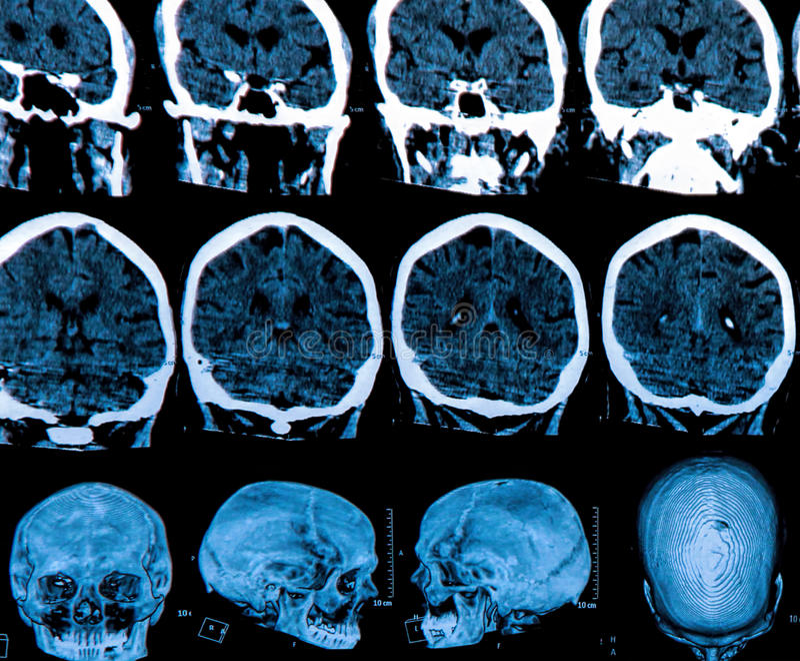 Mri hjärnbildläsning royaltyfria bilder