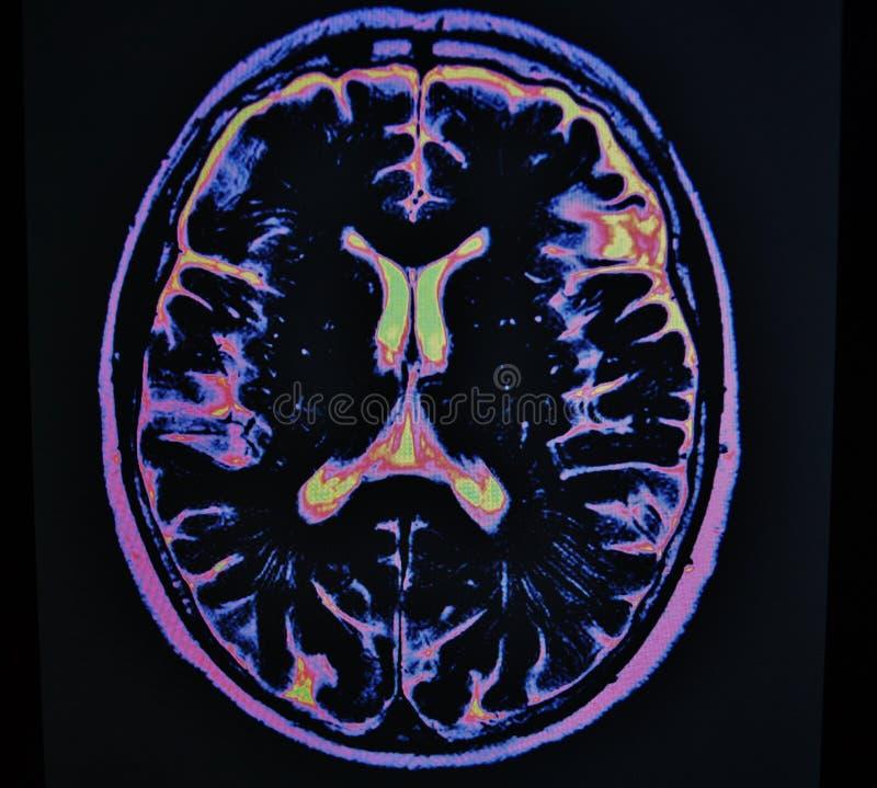 Mri hjärnslaglängd arkivfoto