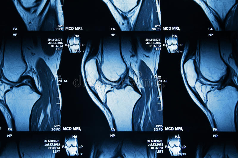 MRI image of knee royalty free stock images