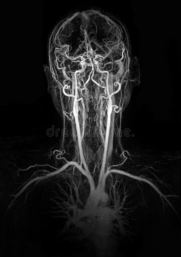 MRI image show head and neck vessel royalty free stock image