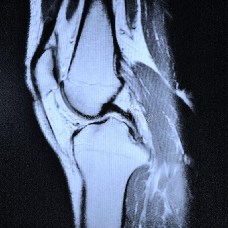 Mri izquierdo de la rodilla imagenes de archivo