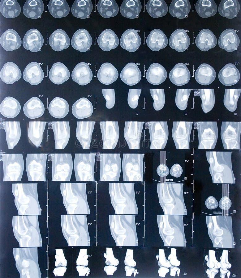 MRI Knee royalty free stock image