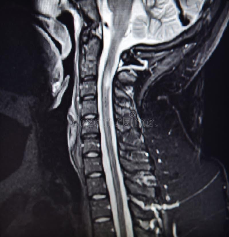 MRI lesion karkowej części niebezpieczna patologia zdjęcia stock