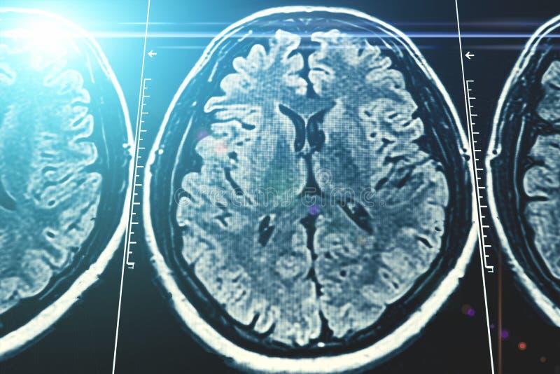 Mri móżdżkowego obrazu cyfrowego tło, rezonans magnetyczny tomografia z błękitnym lekkim skutkiem, zdjęcie royalty free