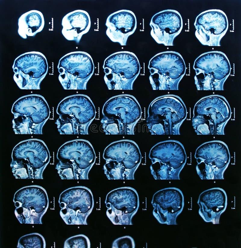 MRI Móżdżkowy obraz cyfrowy obraz royalty free