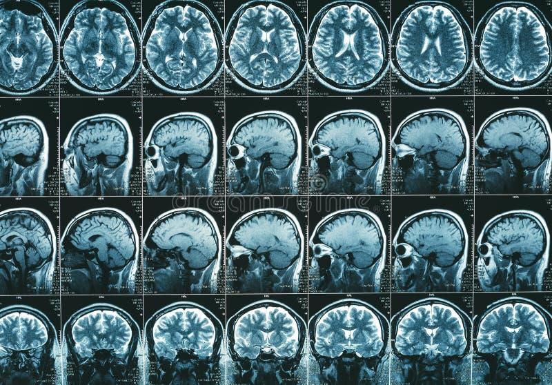 MRI móżdżkowy obraz cyfrowy lub rezonans magnetyczny kierowniczy wizerunek wynikamy obrazy stock