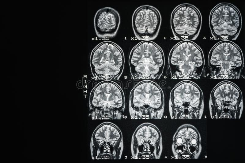 MRI m?zg zdrowa osoba na czarnym tle z szarym backlight fotografia stock