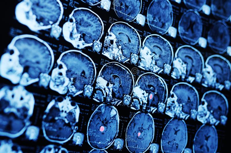 MRI magnetic resonance image scan of a patient with a tumor in the brain stem. Neurosurgery, cancer, surgery stock photos