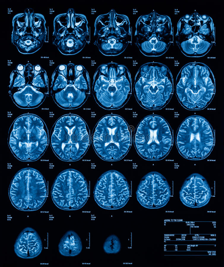 MRI (Magnetic resonance imaging) of the brain, transvers view, T2. History: A 13 years old boy with fever and alteration of consciousness, was sent to rule out royalty free stock photos