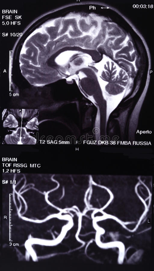 MRI and MR angiography. Of cerebral arteries royalty free stock image