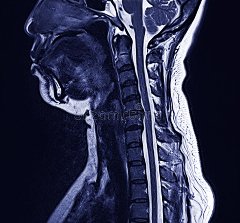 Download MRI neck stock photo. Image of care, back, defect, diagnosis - 24527858