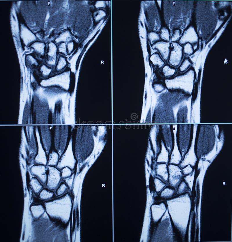 MRI obrazu cyfrowego wyników testu nadgarstku ręki uraz fotografia royalty free