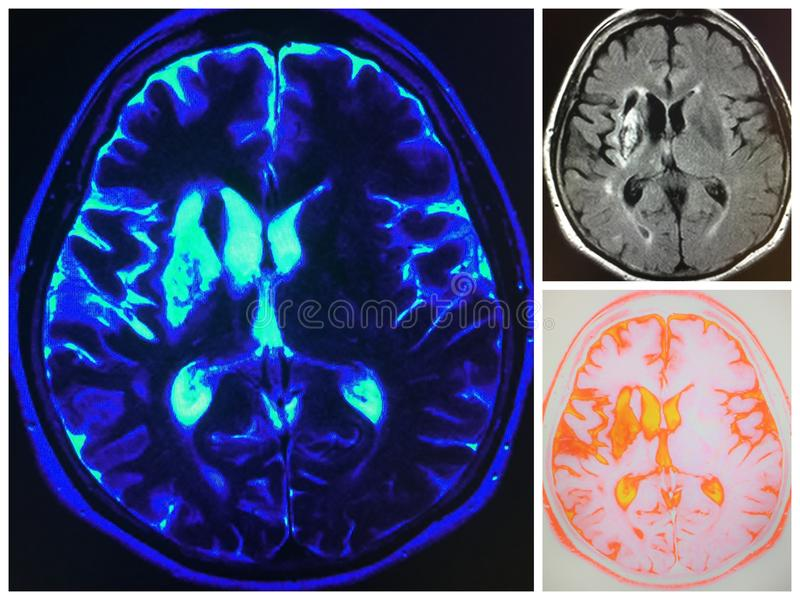 Mri right cerebral artery area infarct collage. Due to pathology of right middle cerebral artery ,its occlusion due to atherosclerosis ,thrombosis , blockage and stock photography